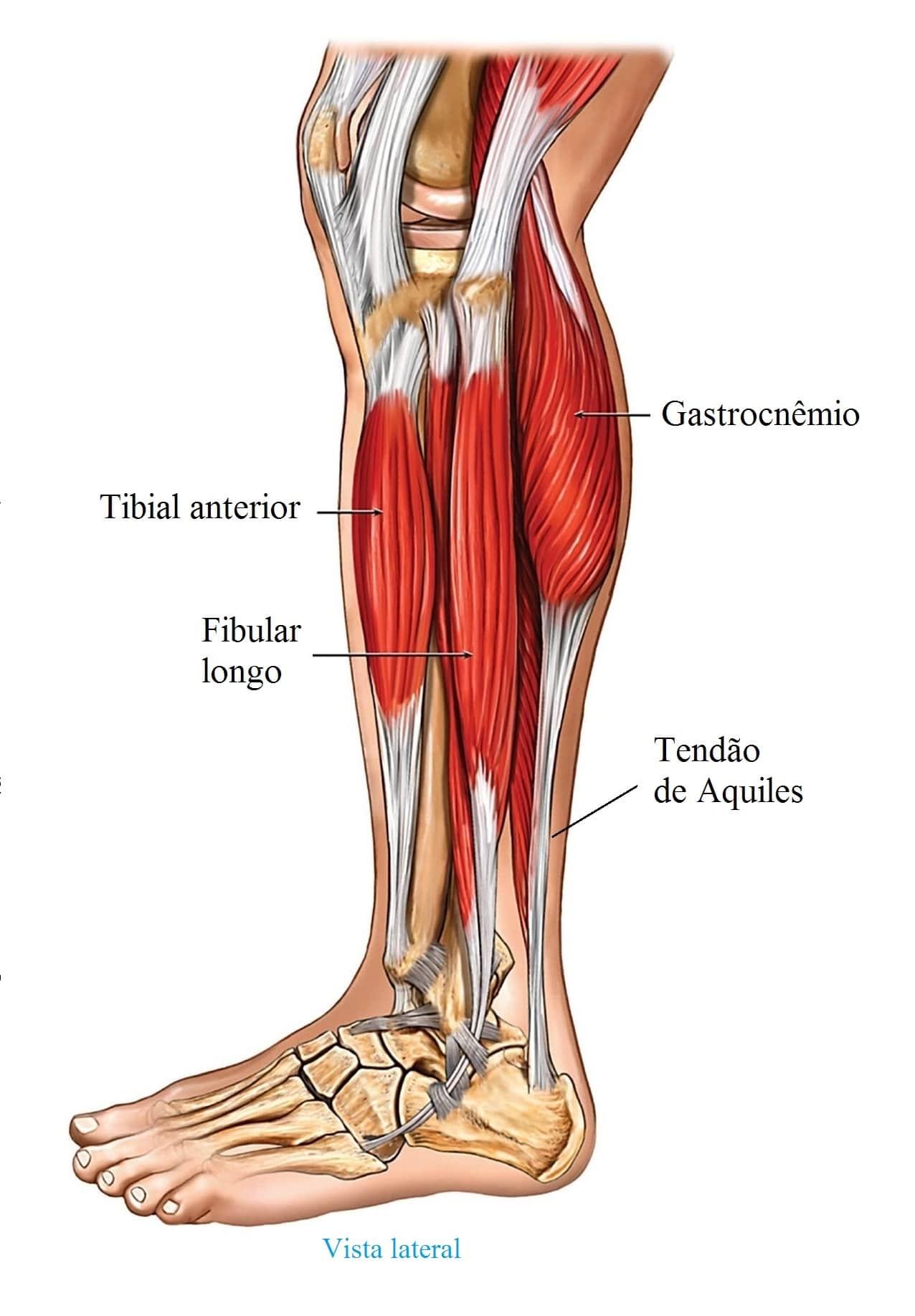 O que você deve fazer por um músculo rompido