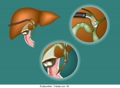 Colangite esclerosante primária,obstrução biliar,duto
