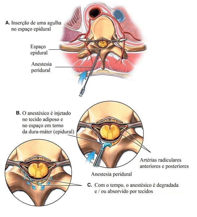 anestesia,epidural