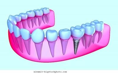 Dente, implante, remover