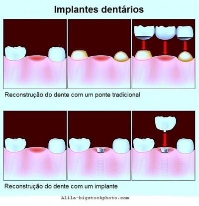 Granuloma dentário, implante, ponte