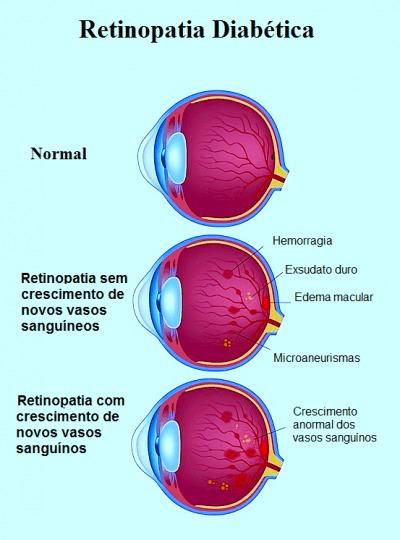 Retinopatia,diabética,proliferativa, microaneurismas, exsudados, difícil, vasos sanguíneos