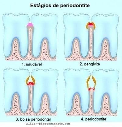 Cuidados para a periodontite, estágios