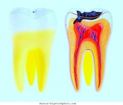 cárie dentária,dente saudavel