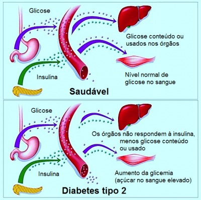 diabetes,glicose,insulina,glicemia