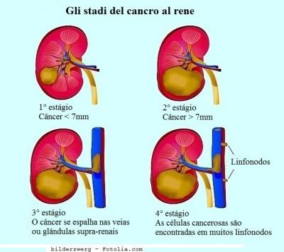 Câncer nos rins,estágio,quatro, IV