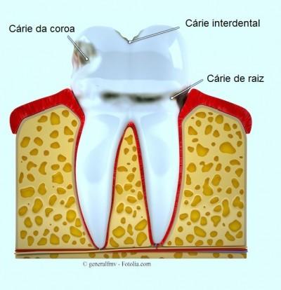 Cárie nos dentes,raiz,interdental,coroa