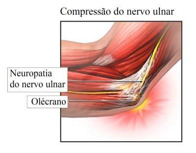 compressão,do,nervo,ulnar