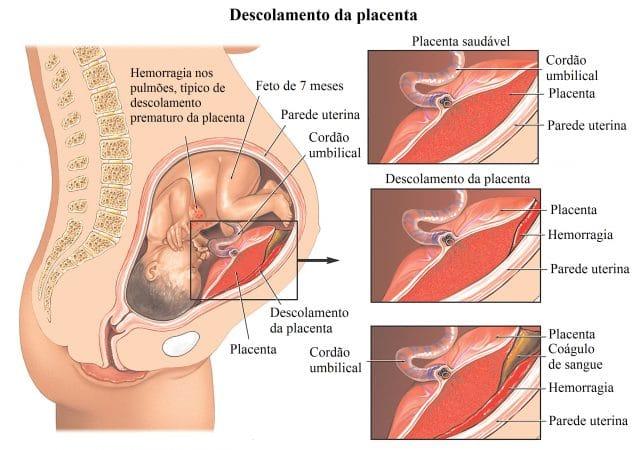 destacamento,da,placenta