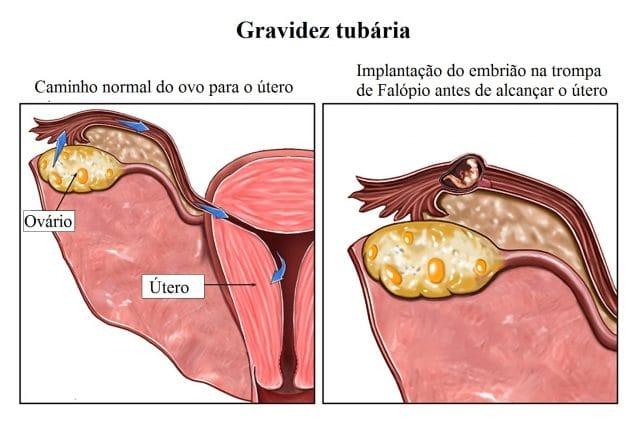 gravidez,ectópica