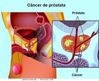 Intervenção da próstata