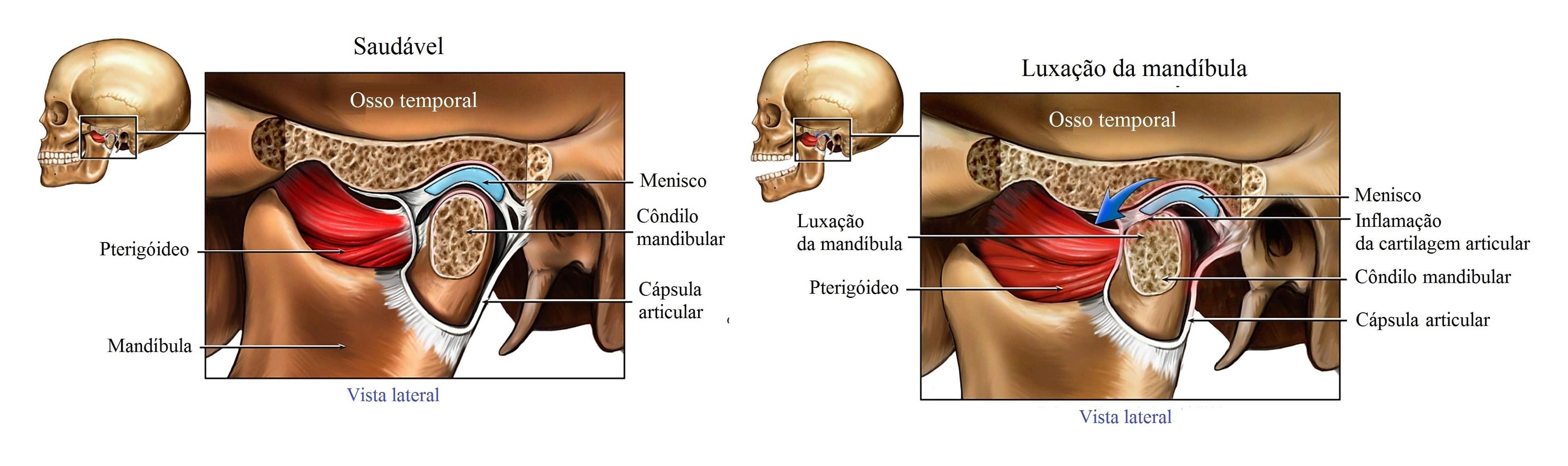 mandíbula,articulação,luxação