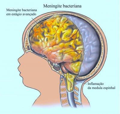 Apnéia do sono A apnéia do sono provoca dores de cabeça. A dor de cabeça pode ocorrer no pescoço.