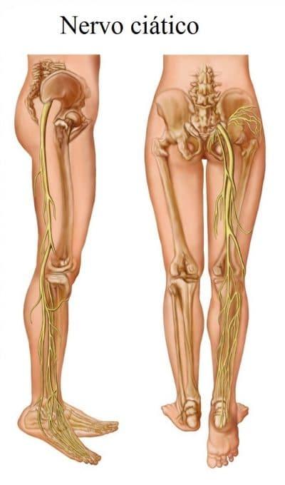 nervo,ciático,pé,equino