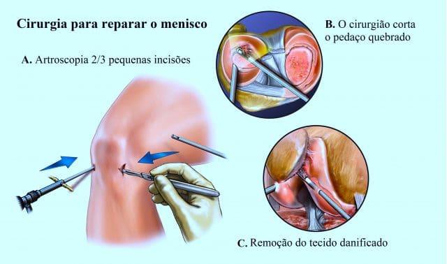 operação,ao,menisco