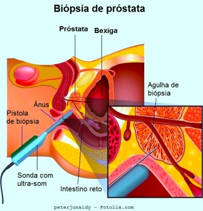 Biópsia de próstata, cirurgia
