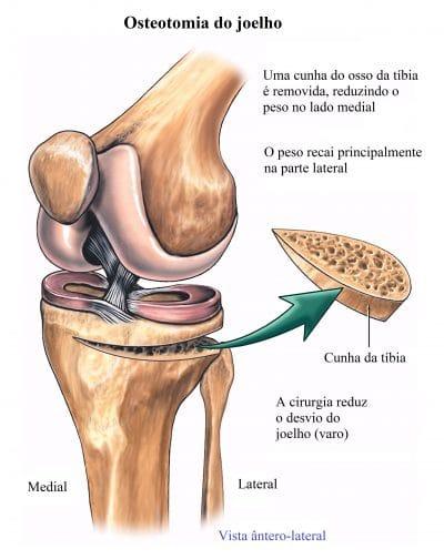 osteotomia,do,joelho