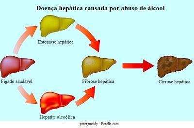 Cirrose,hepática, icterícia, causas, álcool, esteatose