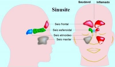 Muco no nariz, sinusite, paranasais