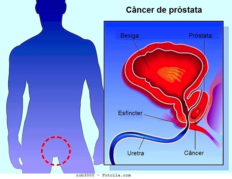 ecografia prostata adenoma