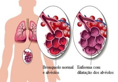 Enfisema pulmonar,fumo,alvéolos