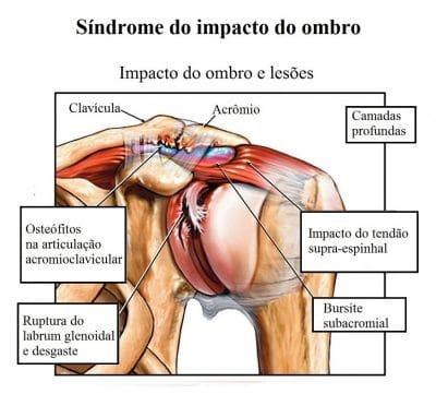 síndrome,do,impacto,do,ombro