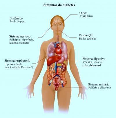 sintomas,de,diabetes