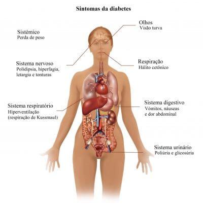 sintomas,de,diabetes,e,consequences