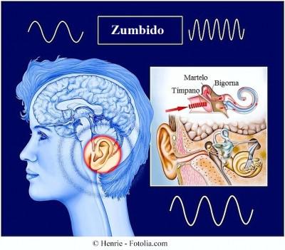 Zumbido, sintomas,orelha