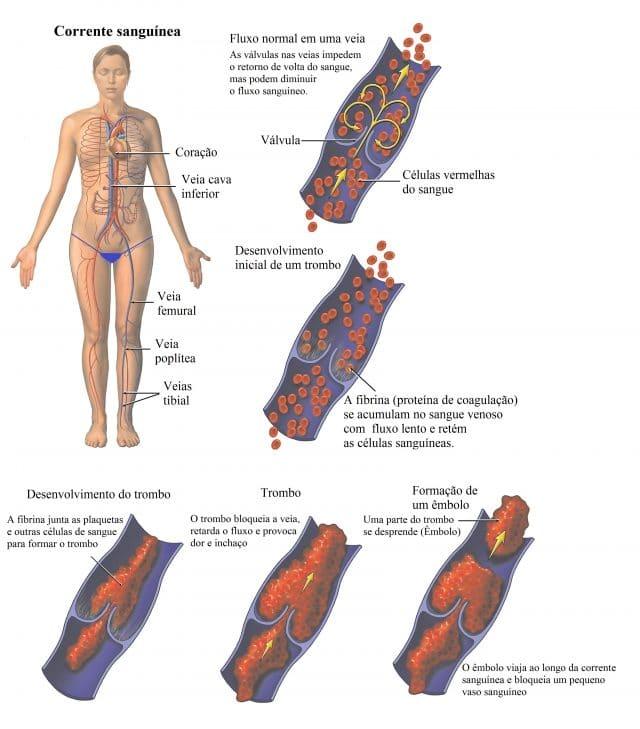 dor e dormência na panturrilha e pé esquerdo