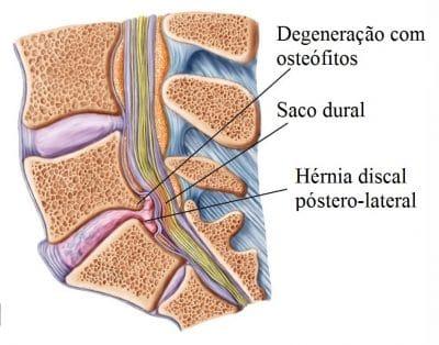 Hérnia,de,disco,com,osteófitos