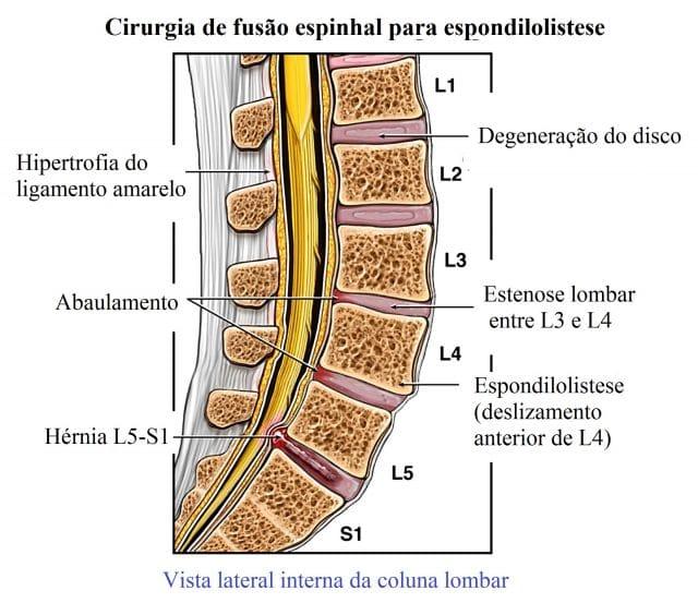 degeneração,da,coluna,vertebral,adição