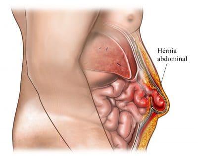 hérnia-abdominal