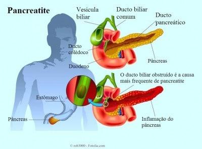 Pâncreas,fígado,duodeno,estômago,vesícula biliar,Pancreatite,ducto
