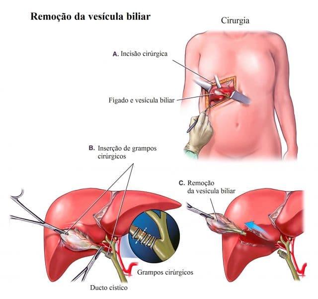remoção,da,vesícula,biliar