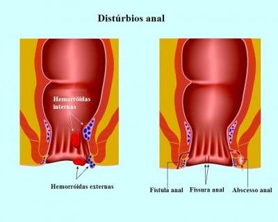 fístula anal, hemorróidas, fissuras, dor, sangue