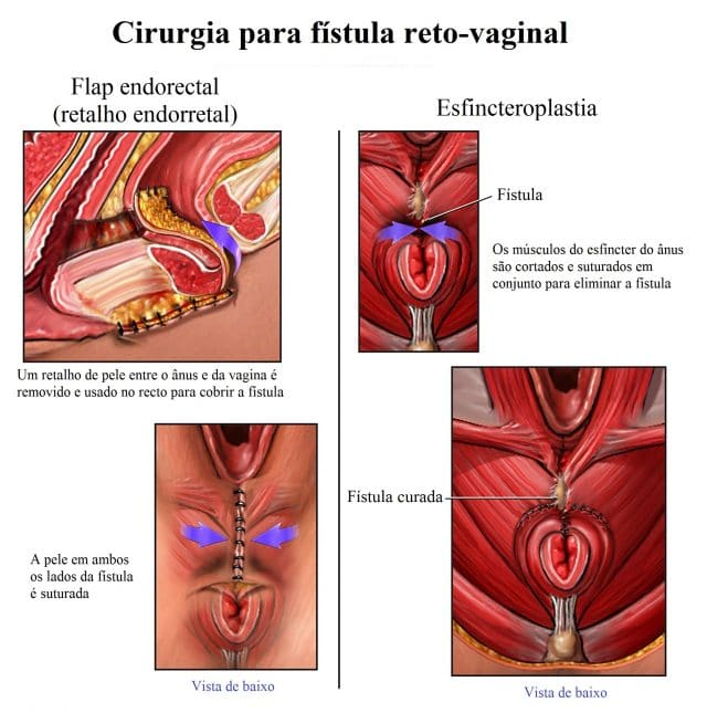 colostomia,tumor,cólon