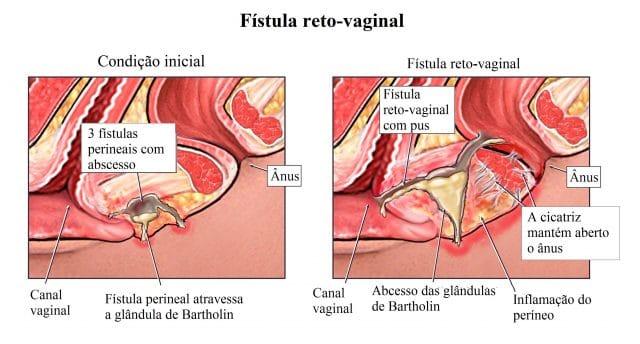 fístula,perianal,abscesso,pus