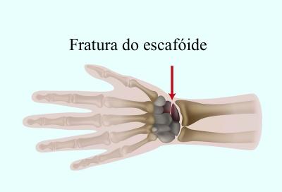 Fratura, escafóide, carpo, mão, pulso, algodistrofia