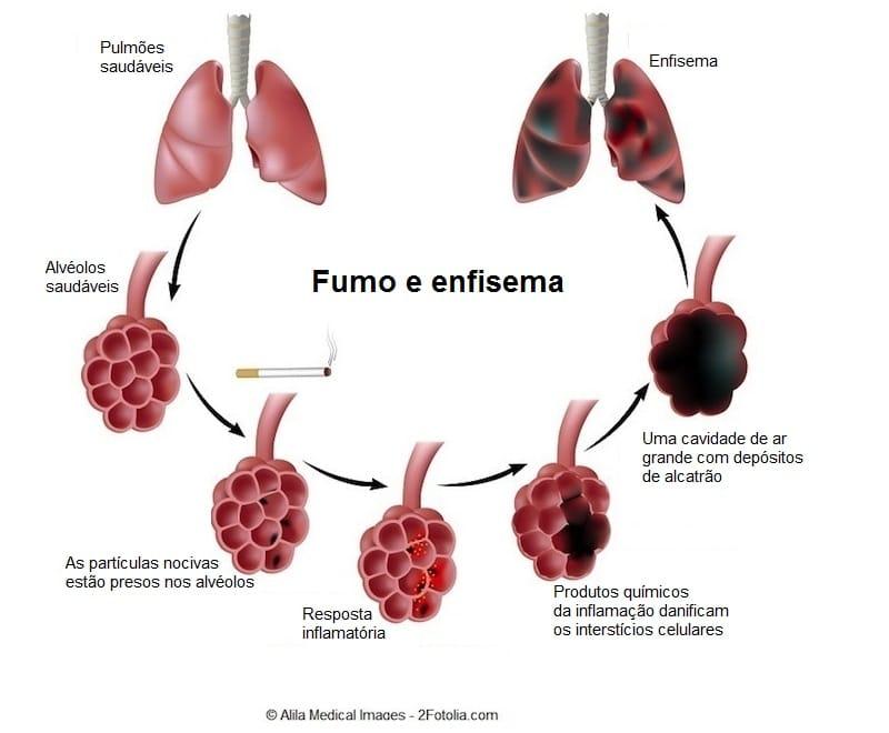 Enfisema,pulmonar,fases,estágios,alvéolo, fumo