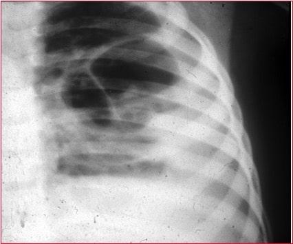 consolidação,pneumonia lobar,radiografia