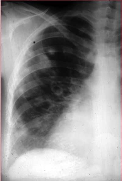 pneumonia,fungica,Aspergillus