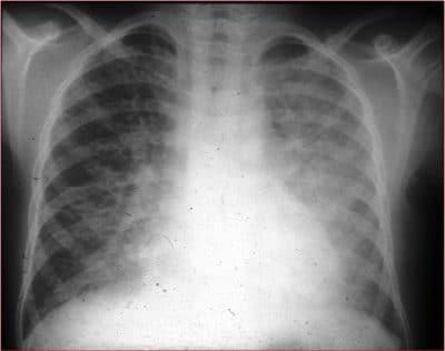 pneumonia intersticial,consolidação,pulmão,direito,esquerdo