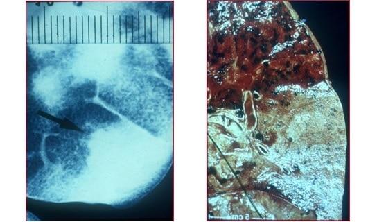 pneumonia lobar,radiografia,istologia,pulmão