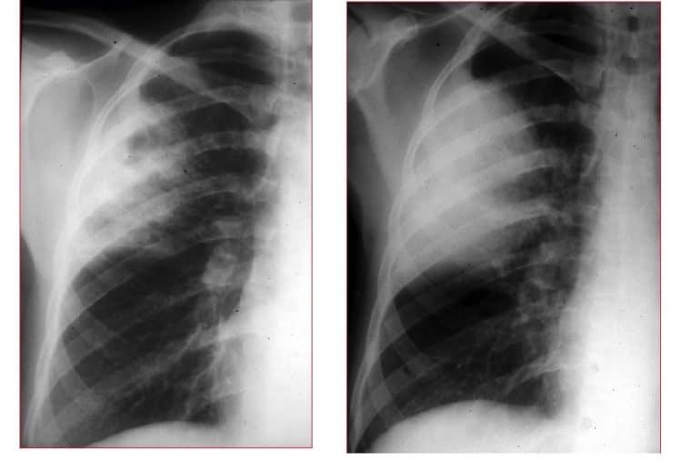 radiografia,tórax,opacidade,lobo,superior,izquierdo