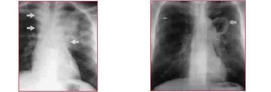 radiografia, tuberculose,Nódulos linfáticos inchados