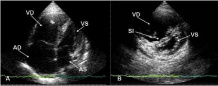 Ecocardiograma, embolia pulmonar