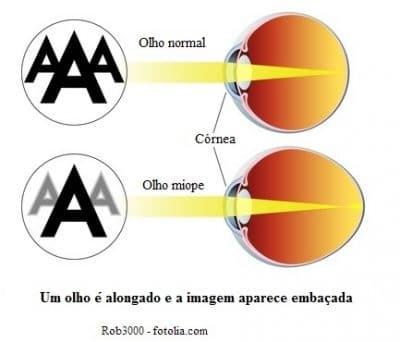 miopia se vede în depărtare)