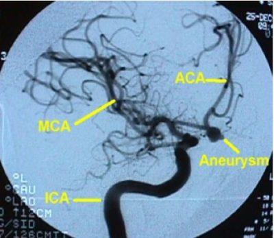 Angiografia cerebral, aneurisma sacular, artéria comunicante anterior
