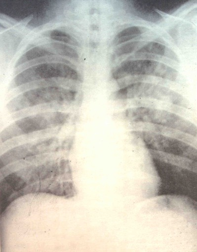 Hematoma pulmonar com aparência a laços